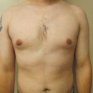 manhattan gynecomastia surgery after 5